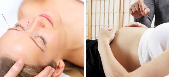 acupuncture et grossesse