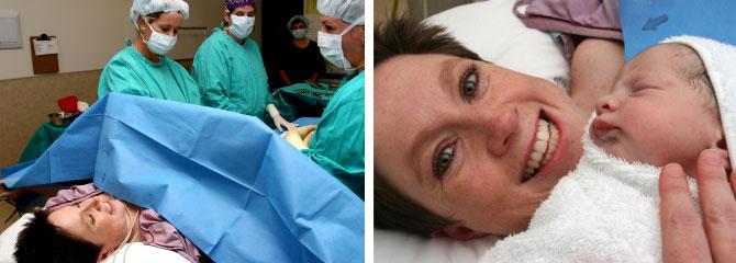cesarienne et anesthesie